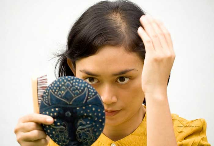 Remedies for Alopecia Hair Loss: Causes, Cure & Treatments