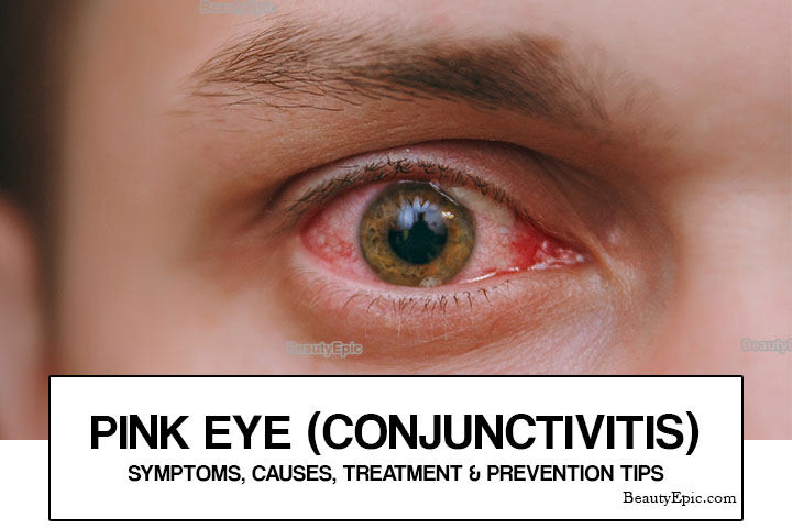 Pink Eye (Conjunctivitis): Symptoms, Causes, Treatment & Prevention Tips