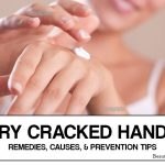 Dry Cracked Hands – Remedies, Causes, and Prevention Tips
