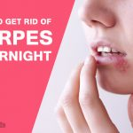 How to Get Rid of Herpes Overnight?