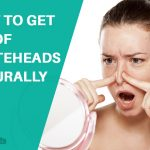 How to Get Rid of Whiteheads Naturally at Home?