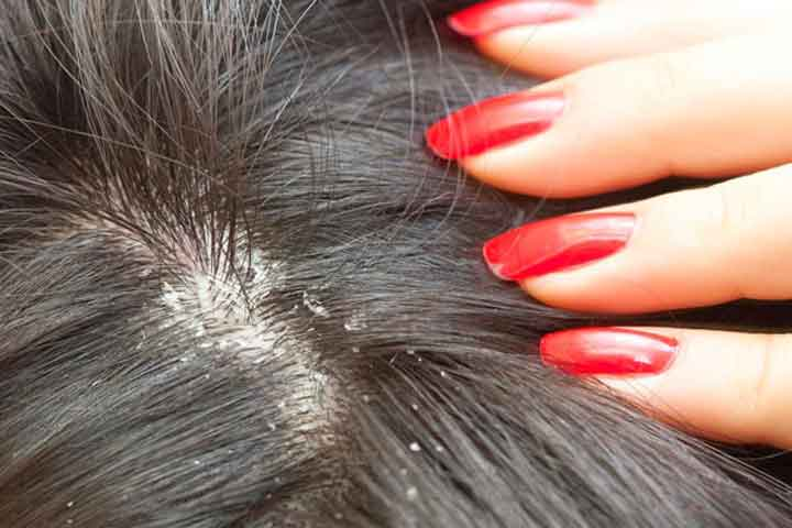 Milk Of Magnesia For Hair