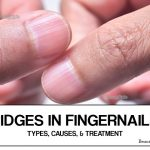 Ridges in Fingernails – Types, Causes and Treatment