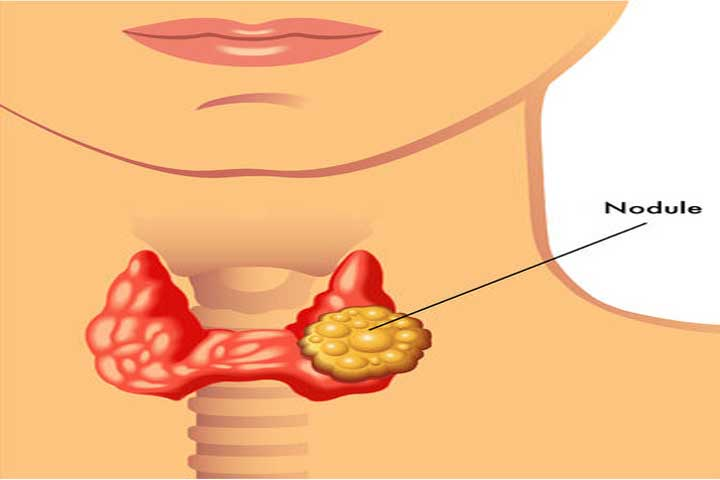 An A Z Guide On How To Treat Thyroid Naturally