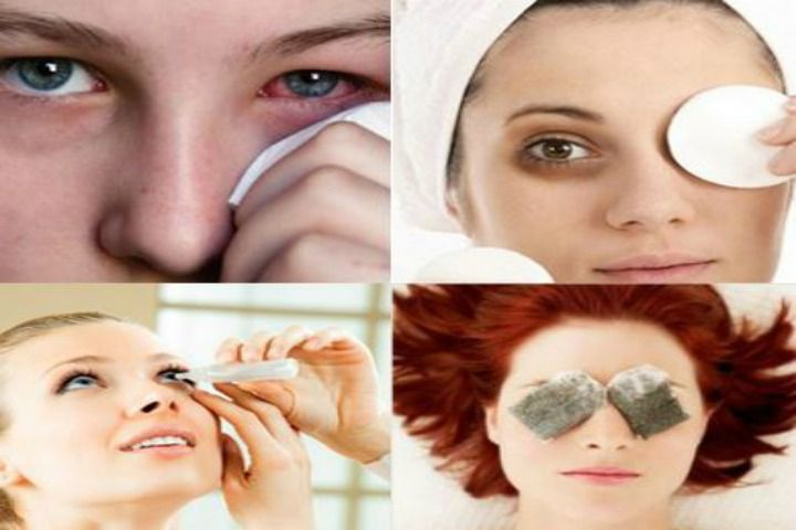 Top 9 Remedies To Cure A Pink Eye
