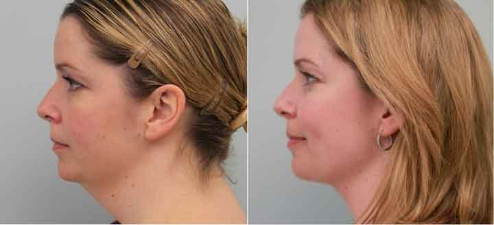 How to get rid of double chin with exercises pictures