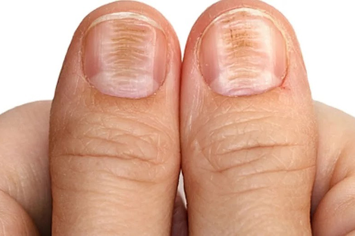 horizontal ridges on fingernails