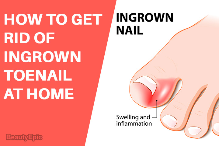 How to Get Rid of an Ingrown Toenail at Home?