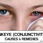 Pink Eye (Conjunctivitis) – Causes & Home Remedies