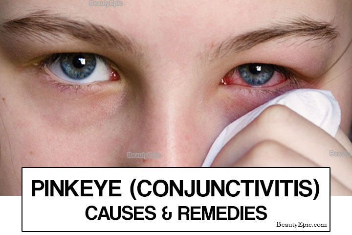 Pink Eye (Conjunctivitis) – Causes & Home Remedies