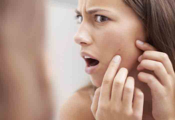 What To Do with A Cystic Pimple