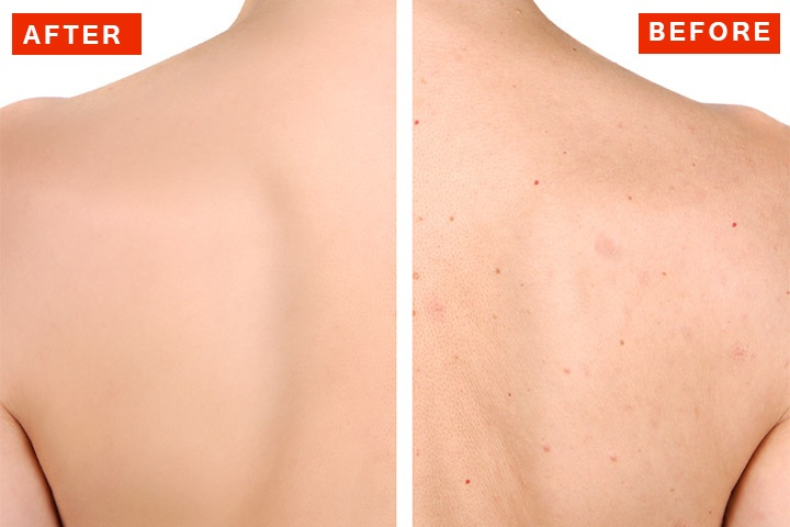 how to clear back acne naturally