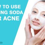 Baking Soda for Acne: How to Use?