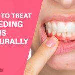 How to Treat Bleeding Gums: 10 Home Remedies to Try
