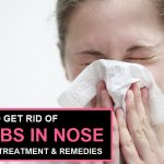 How to Get Rid of Scabs in Nose, Causes, Treatment, Remedies