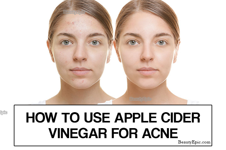 How To Use Apple Cider Vinegar to Treat Acne Scars