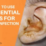 6 Best Essential Oils for Ear Infection and How to Use