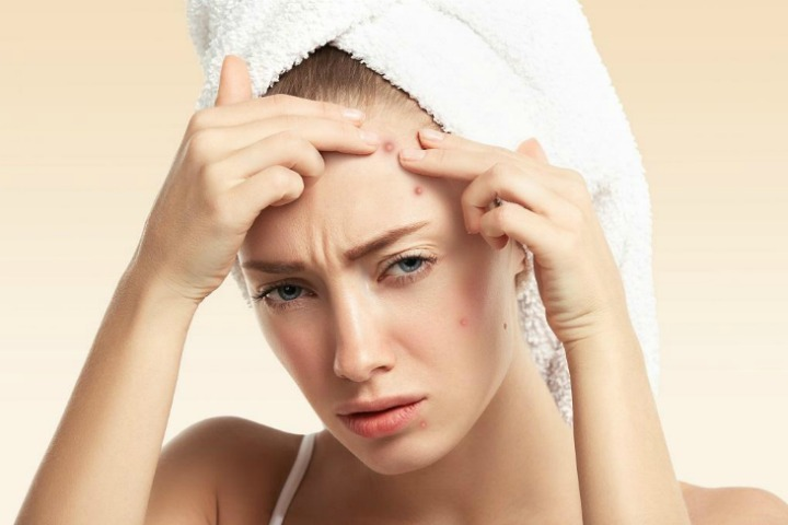 face masks for acne and pimples