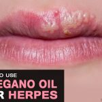 Oregano Oil for Herpes – How Effective Is it?