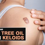 Tea Tree Oil for Keloids – How Effective Is it?