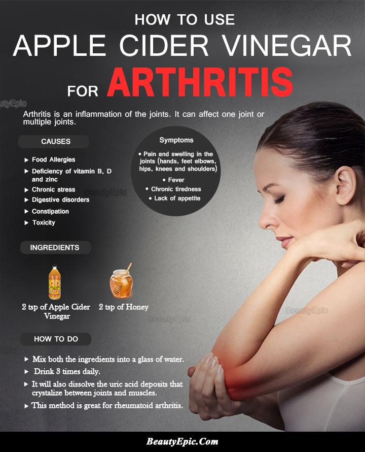 Apple Cider Vinegar for Arthritis Pain: How to Use?
