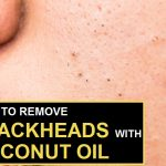 How to Get Rid of Blackheads Fast with Coconut Oil