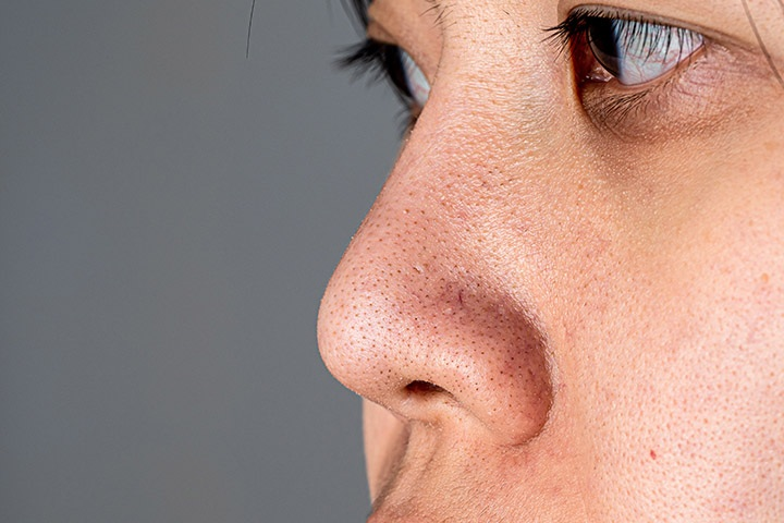 How to Remove Blackheads with Apple Cider Vinegar?