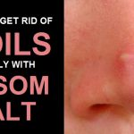 8 Effective Ways to Use Epsom Salt to Get Rid Of Boils Naturally