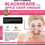 How to Get Rid of Blackheads Fast with Apple Cider Vinegar