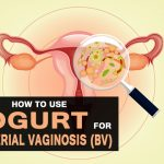 4 Easy Ways to Cure Bacteria Vaginosis (BV) with Yogurt