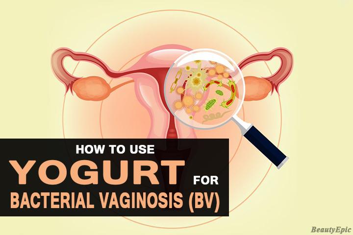 How Effective is Yogurt for BV (Bacteria Vaginosis)?