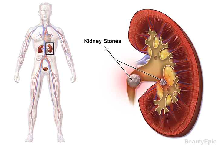 How To Pass Kidney Stones Naturally