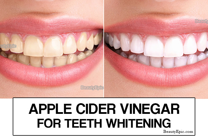 Apple Cider Vinegar for Teeth Whitening – Uses, Tips and Precautions