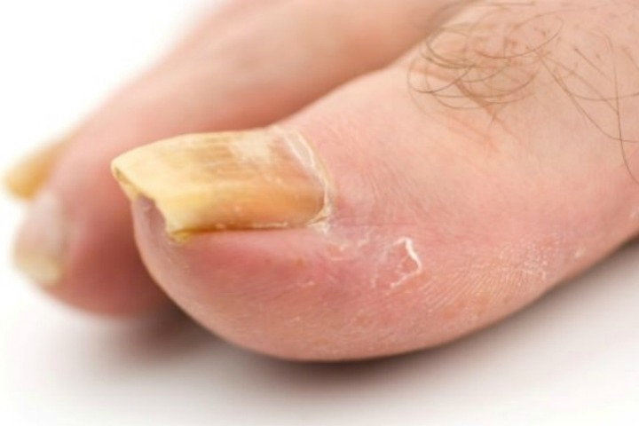 apple cider vinegar foot soak for toenail fungus