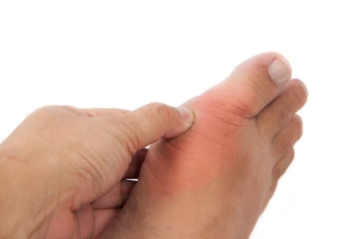 4 Best Ways to Treat Gout with Apple Cider Vinegar Naturally at Home