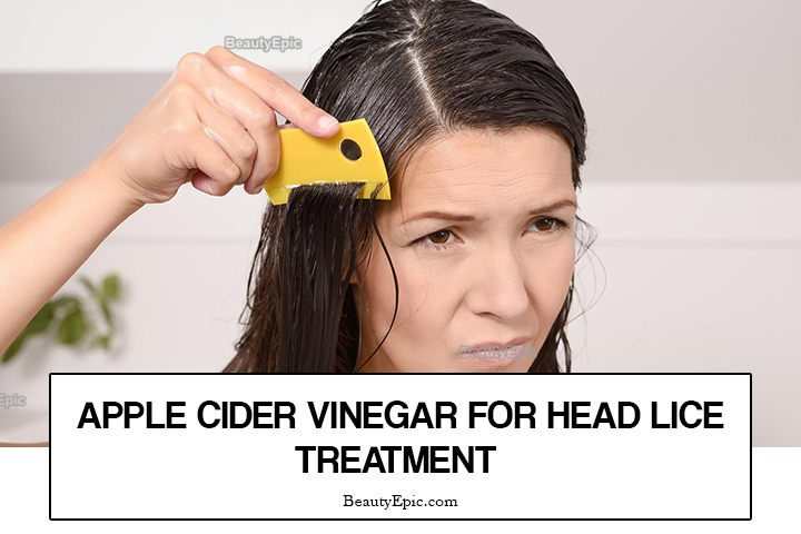 How to Treat Head Lice with Apple Cider Vinegar?