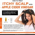How To Use Apple Cider Vinegar For Itchy Scalp & Dandruff Relief?