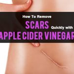 How to remove acne scars with apple cider vinegar?
