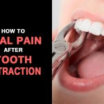 How  To Take Care of Yourself  After a Tooth Extraction