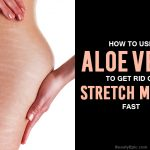 Can Aloe Vera Help Stretch Marks?