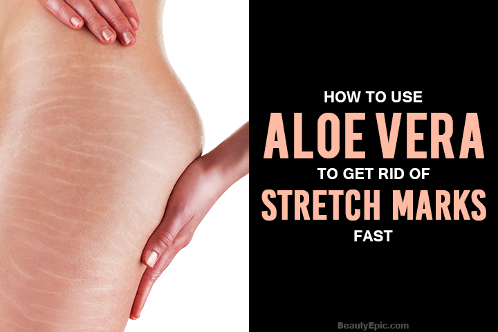 How To Use Aloe Vera to Get Rid of Stretch Marks Fast