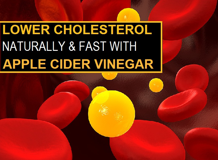 How to Take Apple Cider Vinegar to Lower Cholesterol?