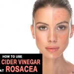 How to Use Apple Cider Vinegar to Treat Rosacea