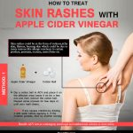 How To Treat Skin Rashes with Apple Cider Vinegar