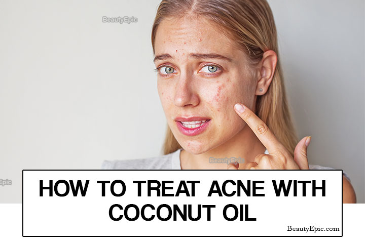 How Do You Use Coconut oil for Acne?