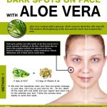 How to Use Aloe Vera to Remove Dark Spots on Face