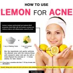 7 Effective Ways To Use Lemon For Treating Acne