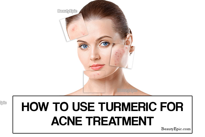 How to Use Turmeric for Acne?