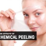 10 Common Side Effects of Chemical Peeling