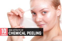 chemical peel side effects